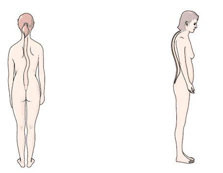 La scoliose et la cyphose - hyperlordose lombaire exercices