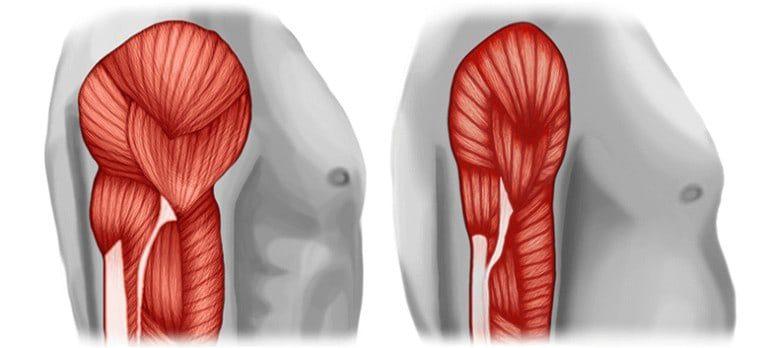Effet de la sarcopénie sur les muscles